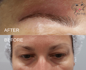 photo of permanent hairstroke brows