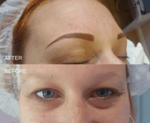 photo of sparse brows to powder brows - permanent makeup