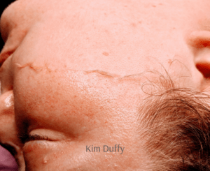 dermaplaning mid treatment
